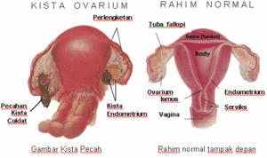 Kista-Ovarium.2221-300x178